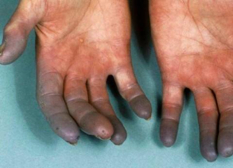 Manos azules: ¿Cómo vivir con esclerodermia?