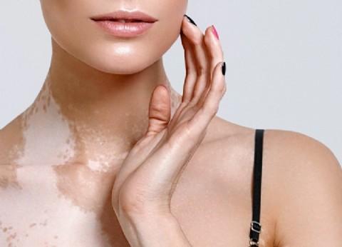 Vitíligo, la enfermedad de las manchas blancas